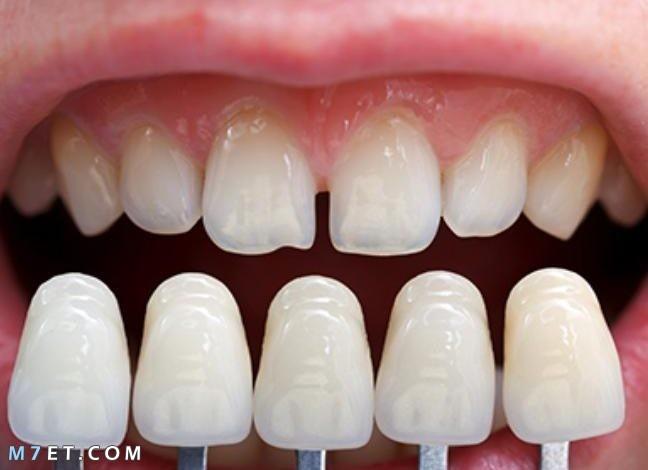 طريقة تلبيس الأسنان