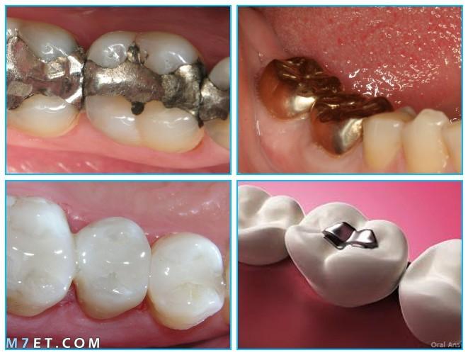 كيفية صنع حشوة الاسنان