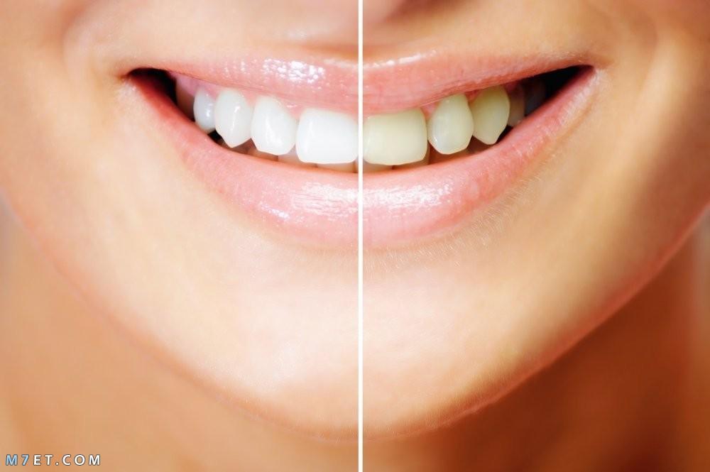 اضرار تبييض الاسنان