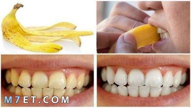 Photo of فوائد قشر الموز لتبييض الاسنان خلال دقائق