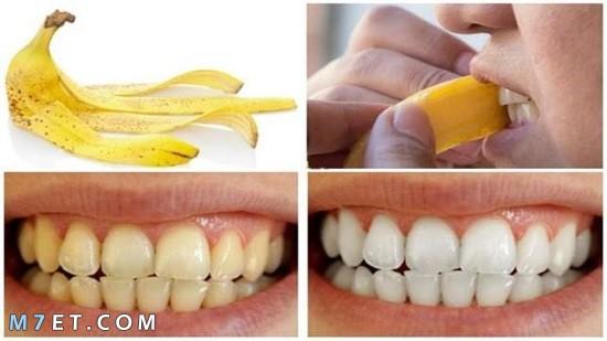 فوائد قشر الموز لتبييض الاسنان