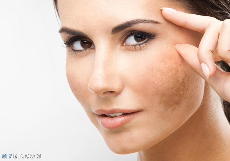 علاج كلف الوجه