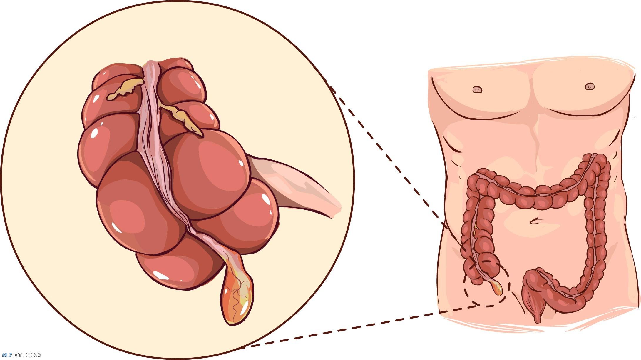 التهاب الزائدة الدودية البسيط