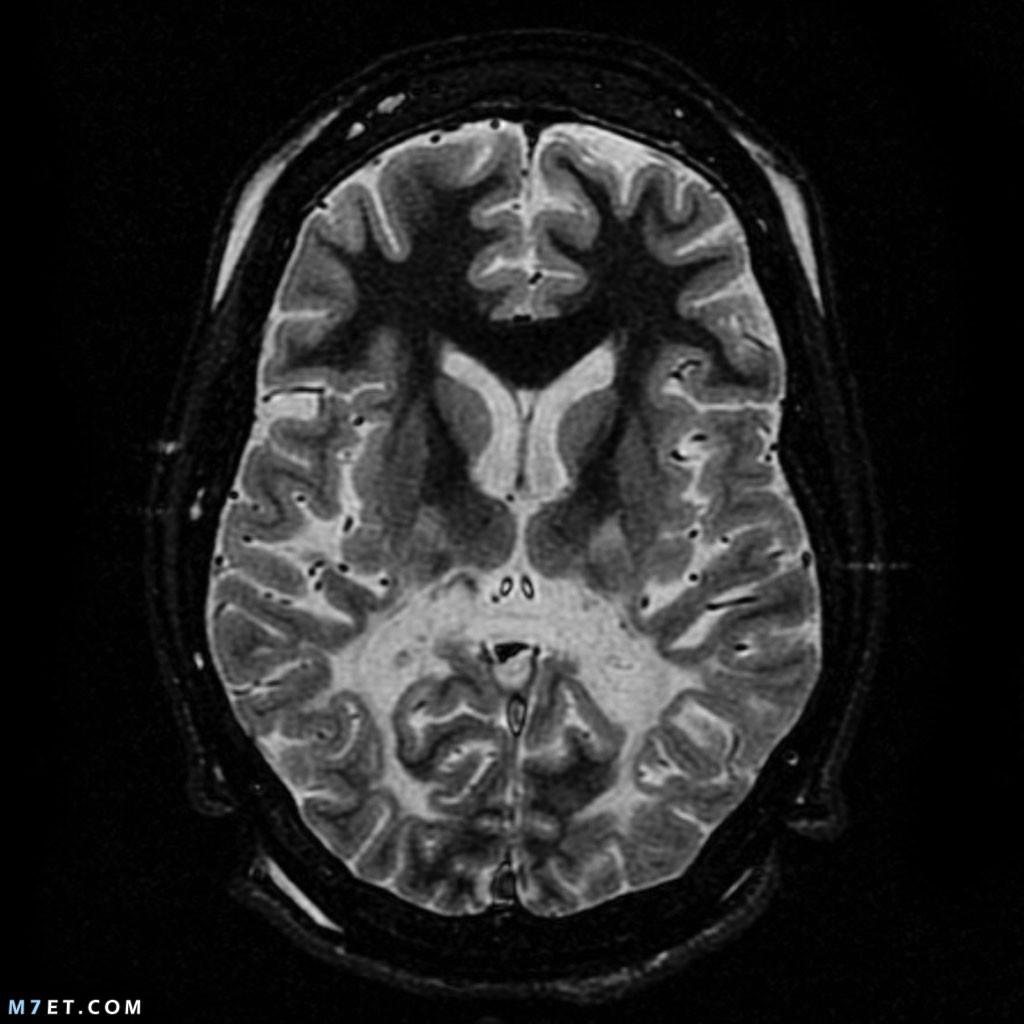 أعراض التهاب الدماغ الحاد المنتشر