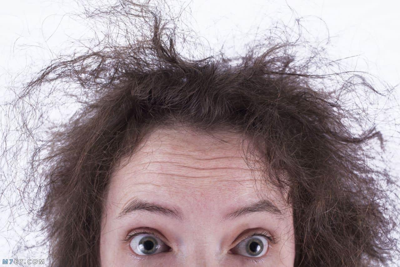 اسباب تقصف الشعر من الامام