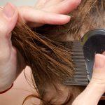اسباب تقصف الشعر من الامام وطرق العلاج بالتفصيل