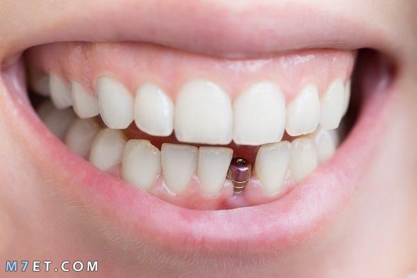 أنواع تركيبات الأسنان المتنوعة 2021
