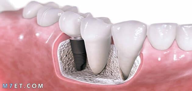 أنواع تركيبات الأسنان