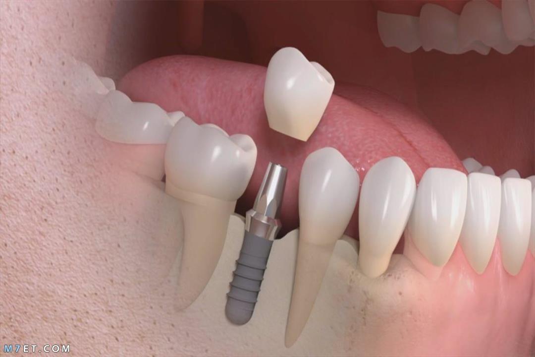 الفرق بين تركيبات الأسنان الحديثة والقديمة