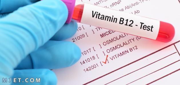 تحليل الفيتامينات
