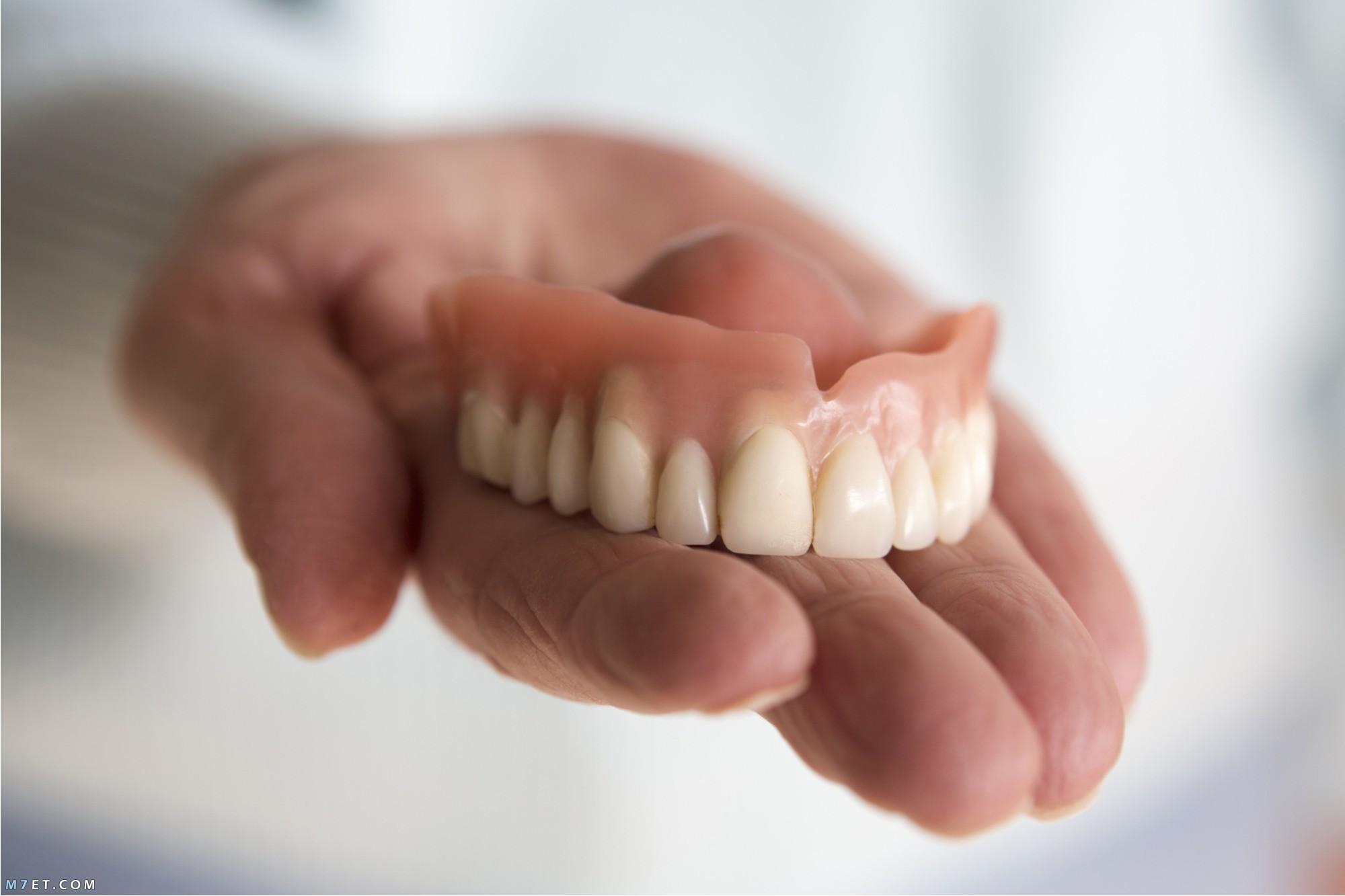 تركيبات الأسنان المتحركة