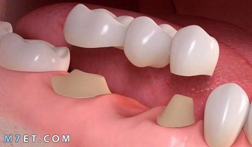 تلبيس الأسنان