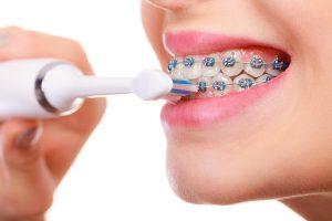 كيفية تنظيف الاسنان مع التقويم للأطفال