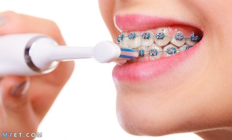 كيفية تنظيف الاسنان مع التقويم
