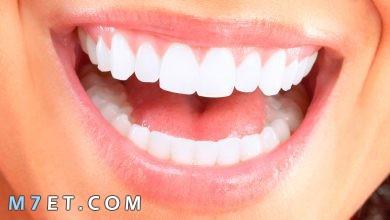 Photo of طرق تبيض الأسنان طبيعيًا | أبسط الطرق التي يمكنك القيام بها