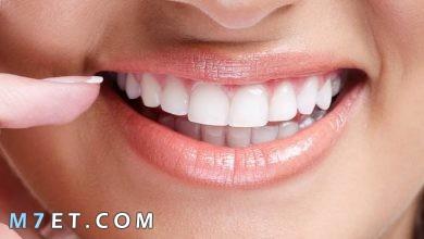 Photo of طرق تبييض الأسنان الصفراء