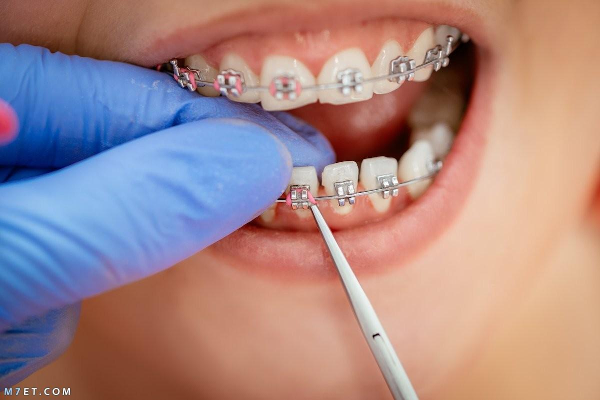 تكلفة تقويم الاسنان