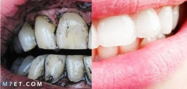 افضل طريقة لتبيض الاسنان