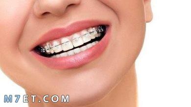Photo of عيوب التقويم المستمر وطريقة تنظيف الأسنان أثناء وجود التقويم