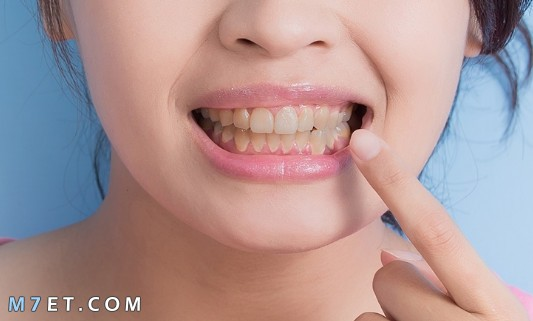 كيفية العناية بتقويم الاسنان
