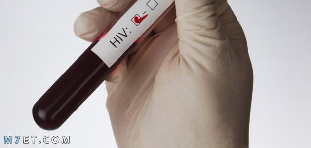 تحليل hiv