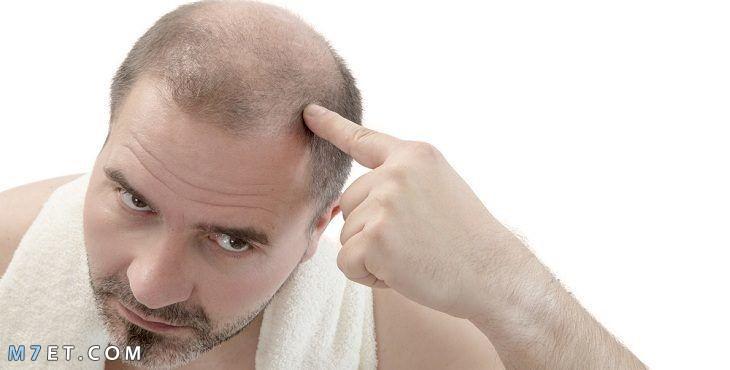 حل مشكلة تساقط الشعر عند الرجال