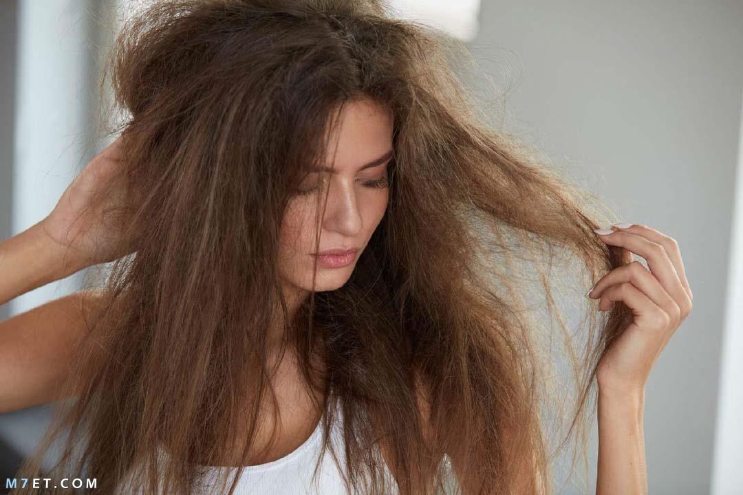 وصفات طبيعية لعلاج جفاف الشعر بالمنزل