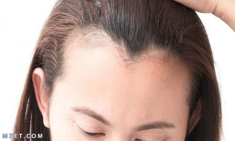 انبات الشعر في اسبوع
