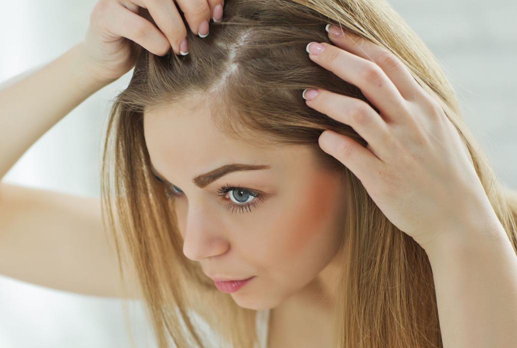 دواء تساقط الشعر من الصيدلية