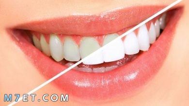 Photo of خلطات تبييض الاسنان بمكونات متوفرة في كل منزل