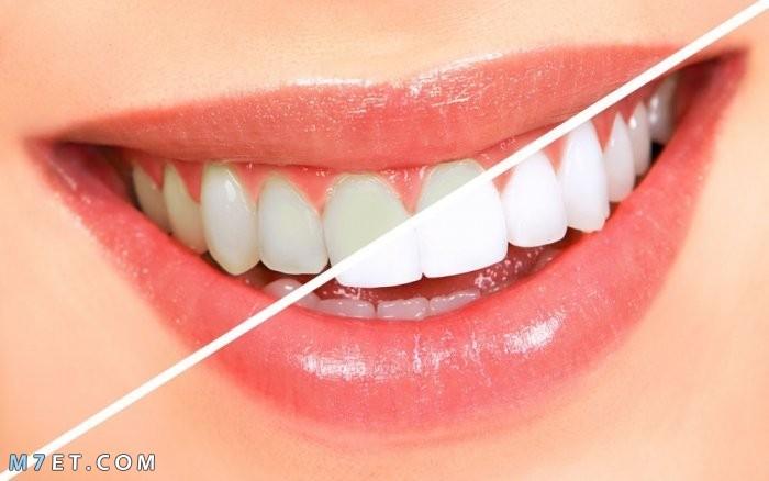 خلطات تبييض الاسنان