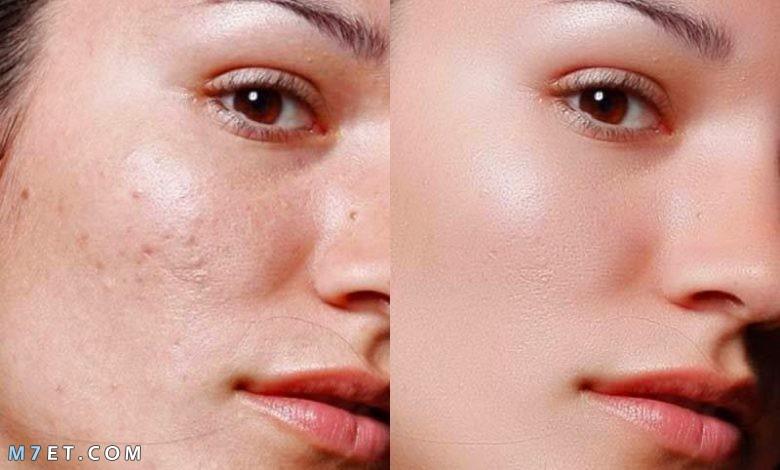 التخلص من اثار الحبوب في الوجه