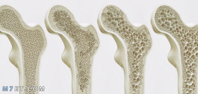 الفرق بين ترقق العظام وهشاشة العظام