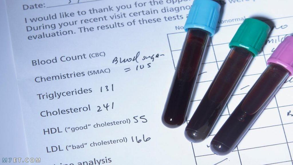 تحليل الكوليسترول