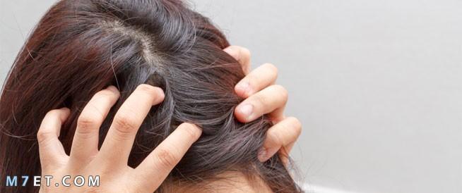 أمراض فروة الرأس