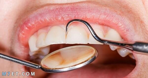 كيفية تقوية مينا الاسنان