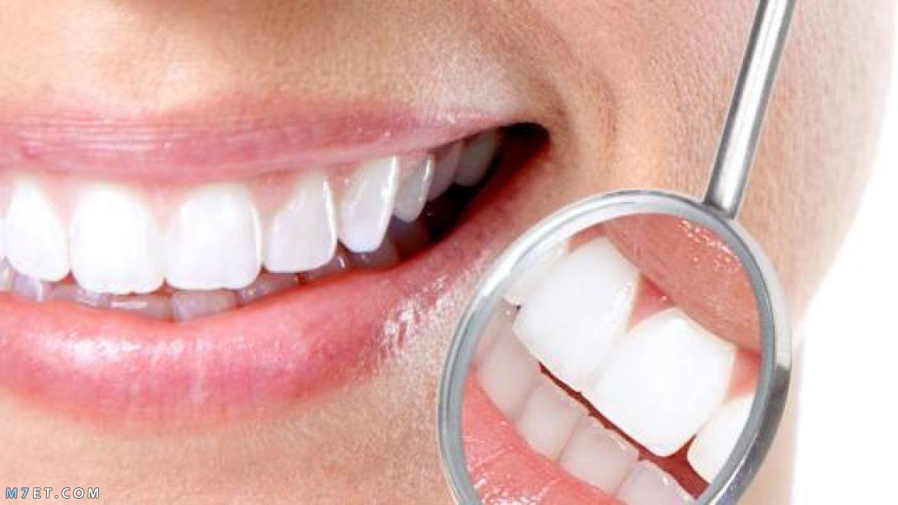 كيفية جعل الاسنان بيضاء