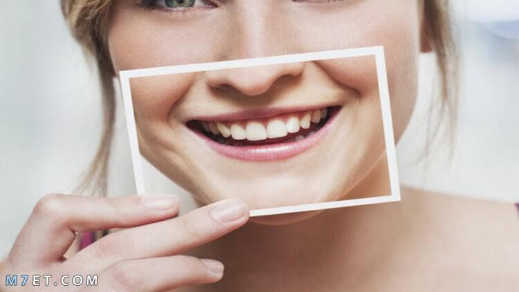 أضرار لصقات تبييض الأسنان