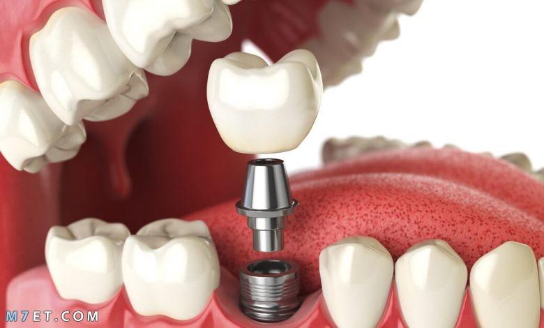 عيوب زراعة الاسنان