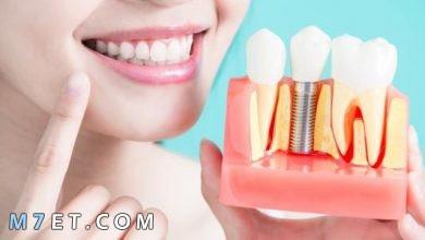 Photo of تركيب الاسنان | أسهل طريقة لـ تركيب الاسنان الثابتة