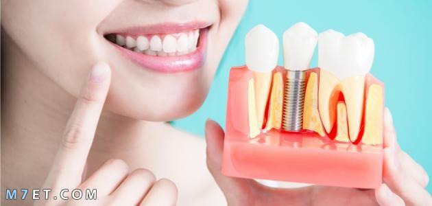 تركيب الاسنان الثابتة