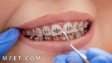 Photo of انواع تقويم الاسنان وافضله