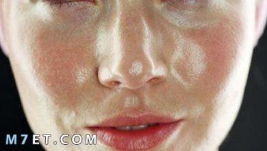 Photo of أعراض البشرة الدهنية | التخلص من البشرة الدهنية نهائياً