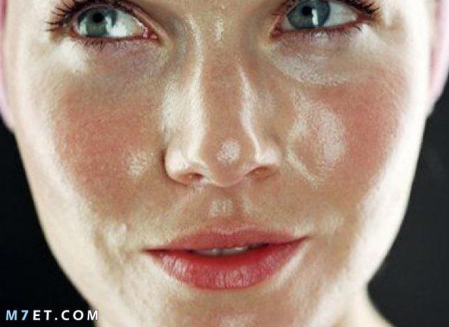 أعراض البشرة الدهنية