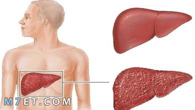 Photo of التهاب الكبد | أنواع التهاب الكبد واعراضها