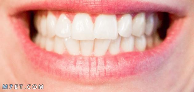 خلطات تبييض الاسنان في المنزل