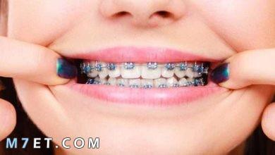 Photo of طريقة تركيب تقويم الأسنان