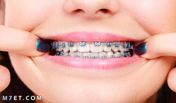 طريقة تركيب تقويم الأسنان