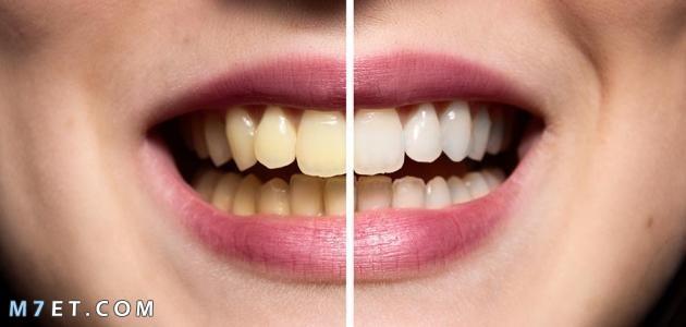طرق تبييض الاسنان