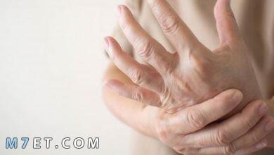 Photo of مرض متلازمة اليد الغريبة alien hand syndrome حقيقة أم خيال